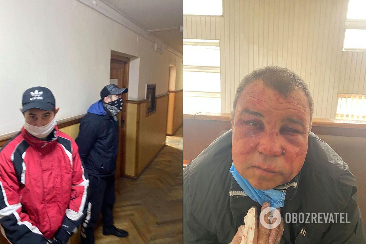 Побитий ветеран АТО Віктор Сімончук