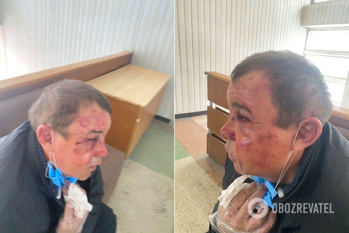Избитый ветеран АТО Виктор Симончук