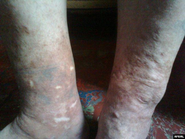 Следы от пыток и шрамы от ожогов