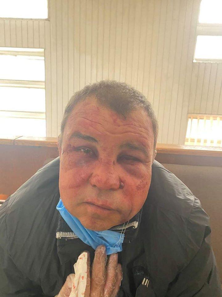 Віктор Симончук після нападу