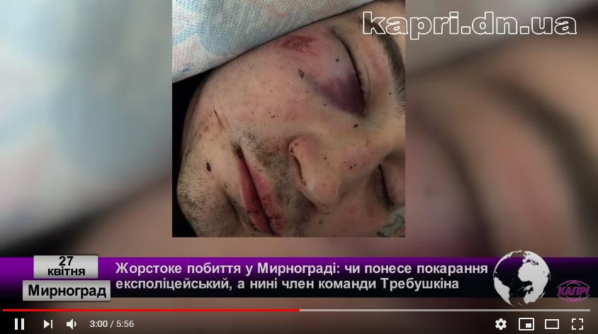 Зламані ніс та щелепа: на Донеччині експоліцейський жорстоко побив підлітка
