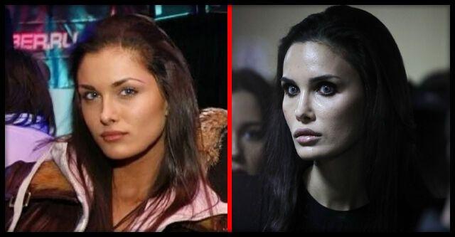 Алана Мамаєва (до і після операції)