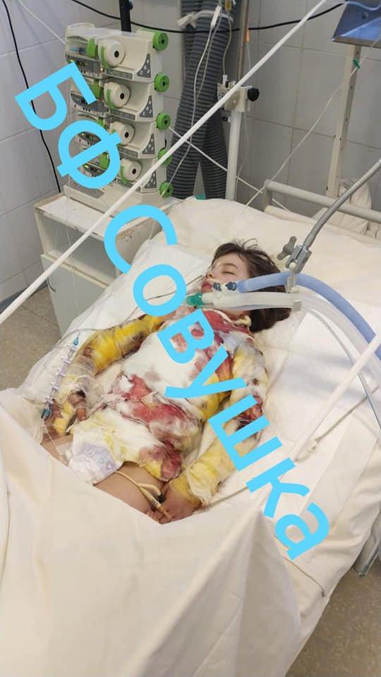 Під Дніпром на пожежі постраждала дитина