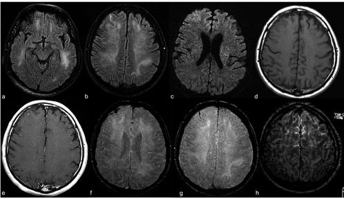 У 44% пацієнтів з COVID-19 МРТ показало аномалії головного мозку