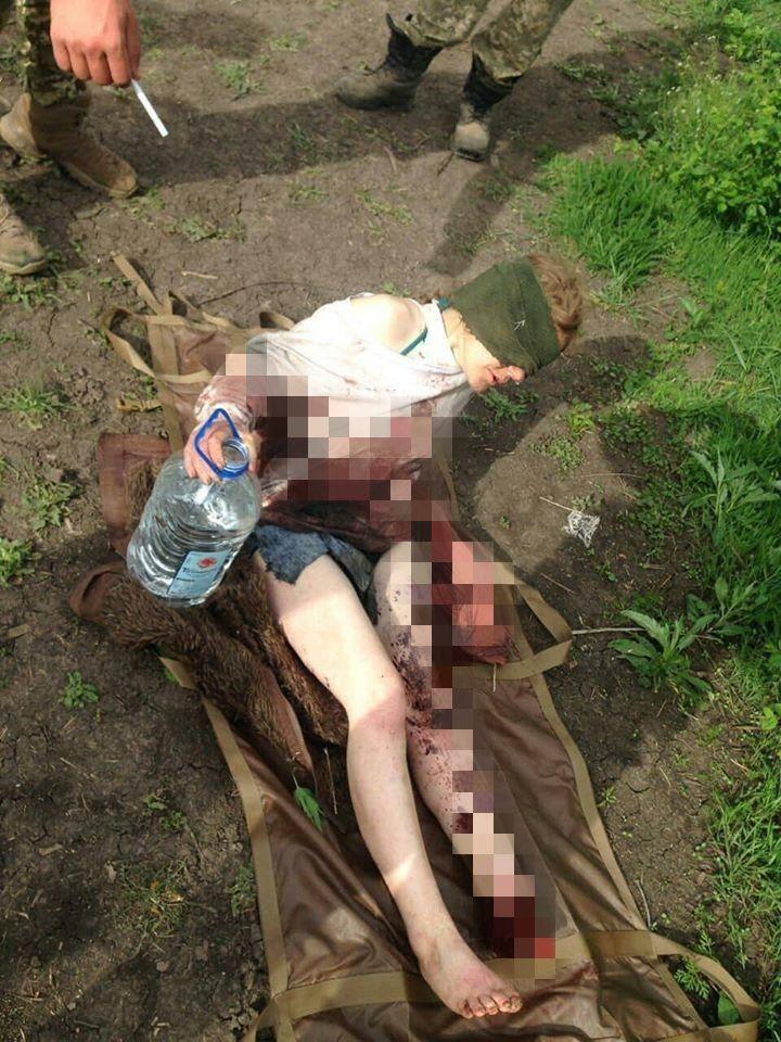 Женщина подорвалась на мине при переходе линии фронта