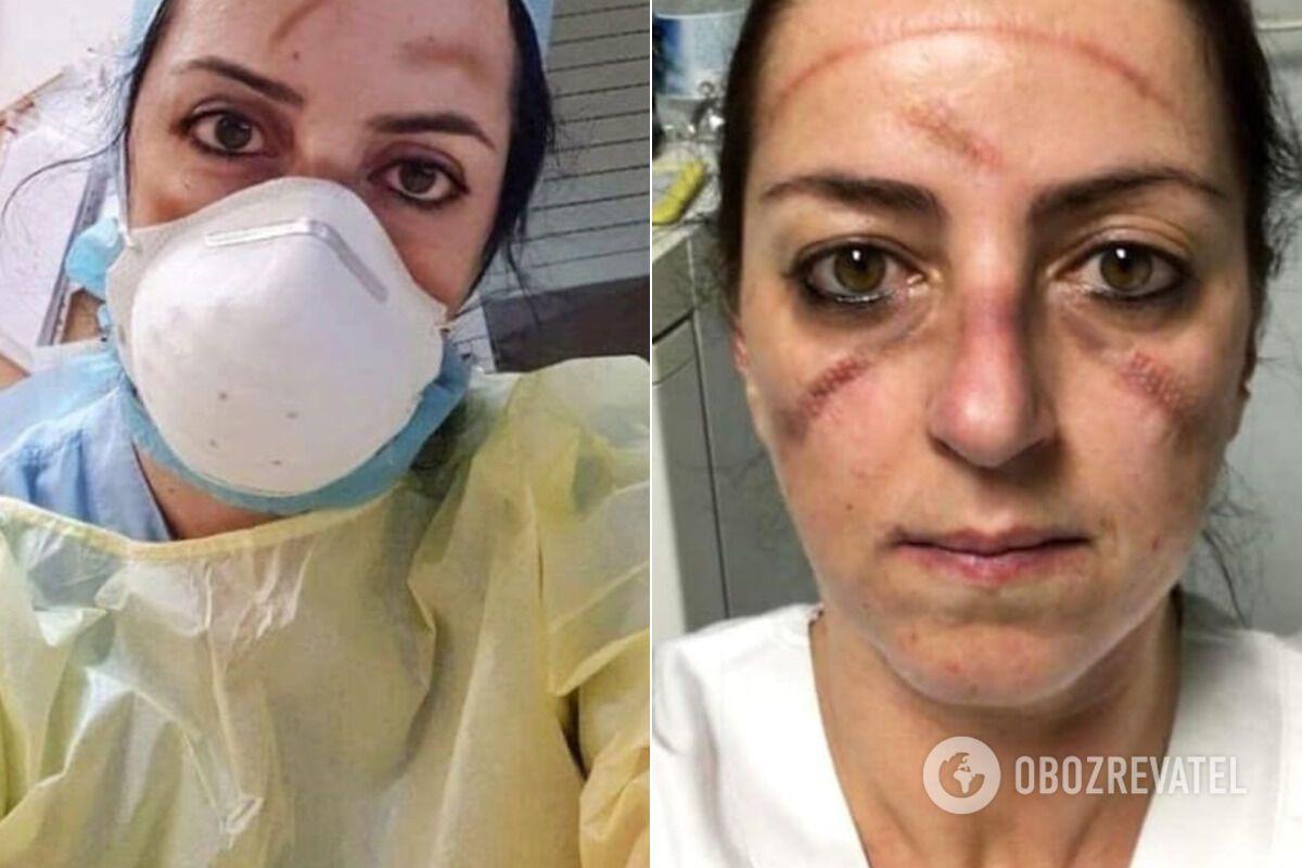 Лицо медика от длительного ношения защитной маски