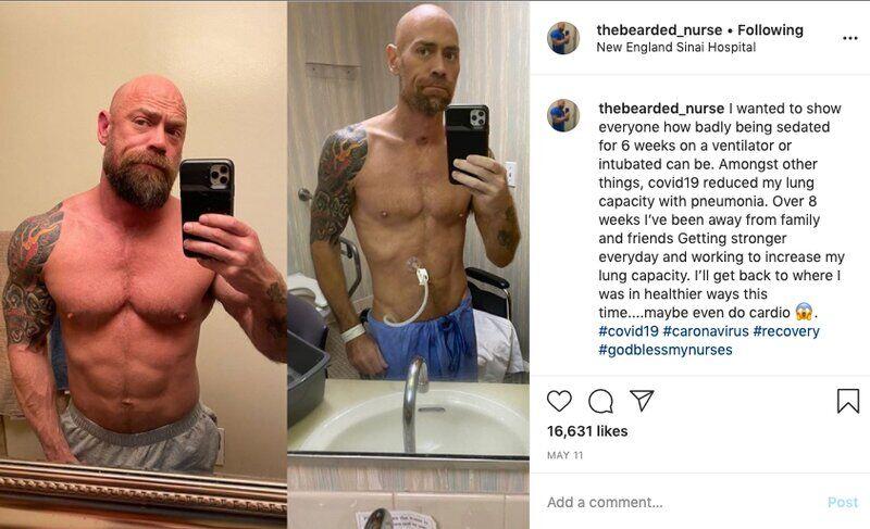 Майк Шульц до і після хвороби