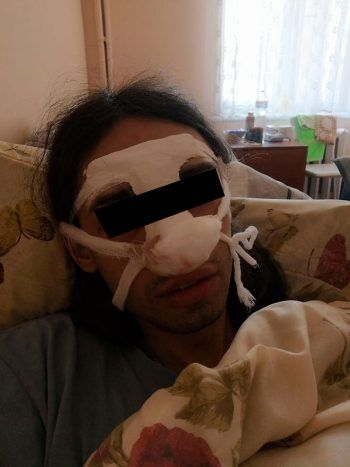 Били в лицо, сломали нос: в Харькове трое мужчин напали на трансгендерную женщину