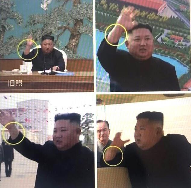 Ким Чен Ына заподозрили в использовании двойника