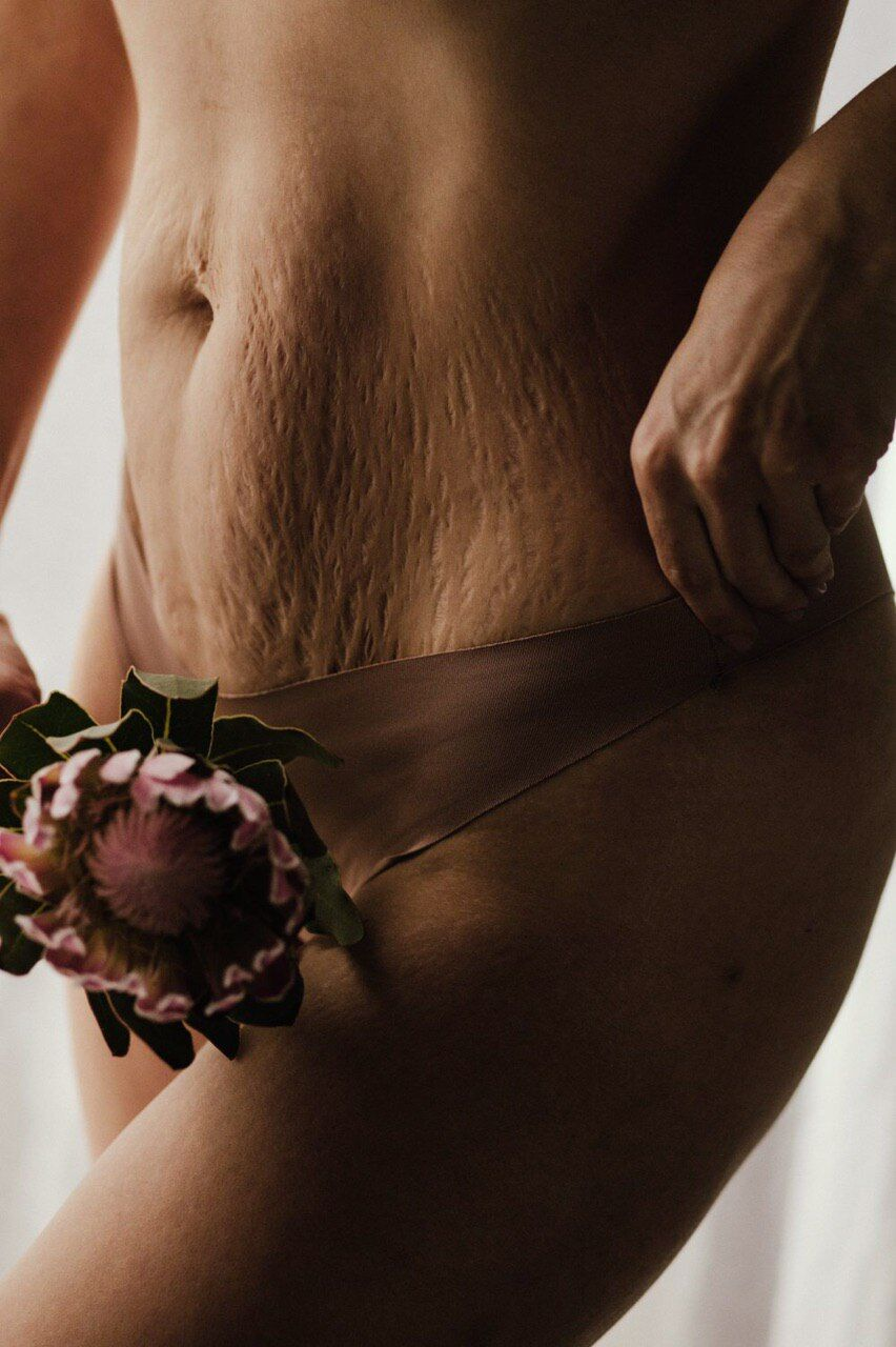 Фотограф показала растяжки женщины, дважды похудевшей на 50 кг