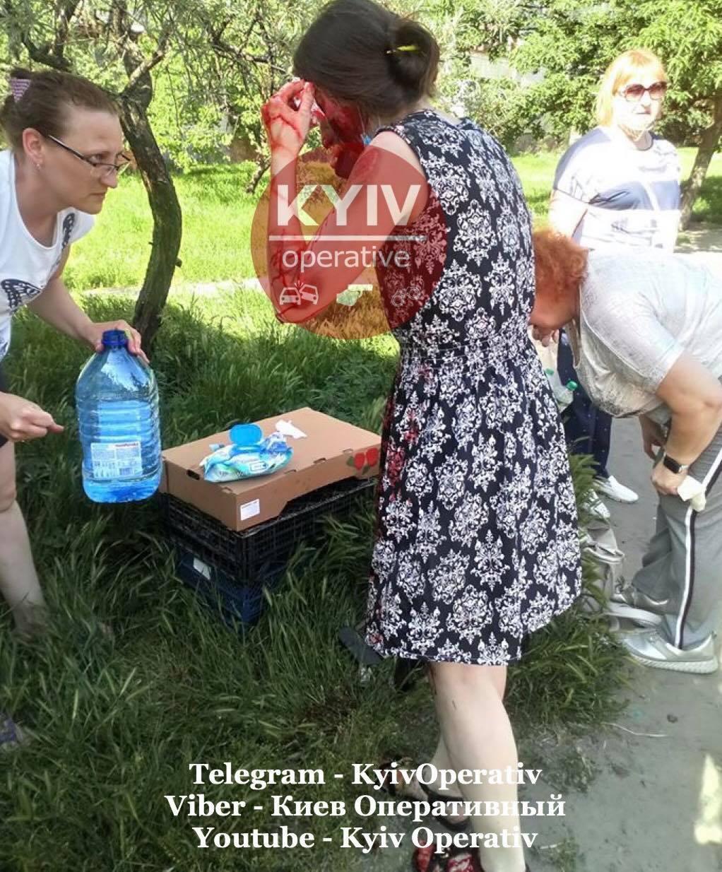 В Киеве авто на переходе сбило женщину и скрылось