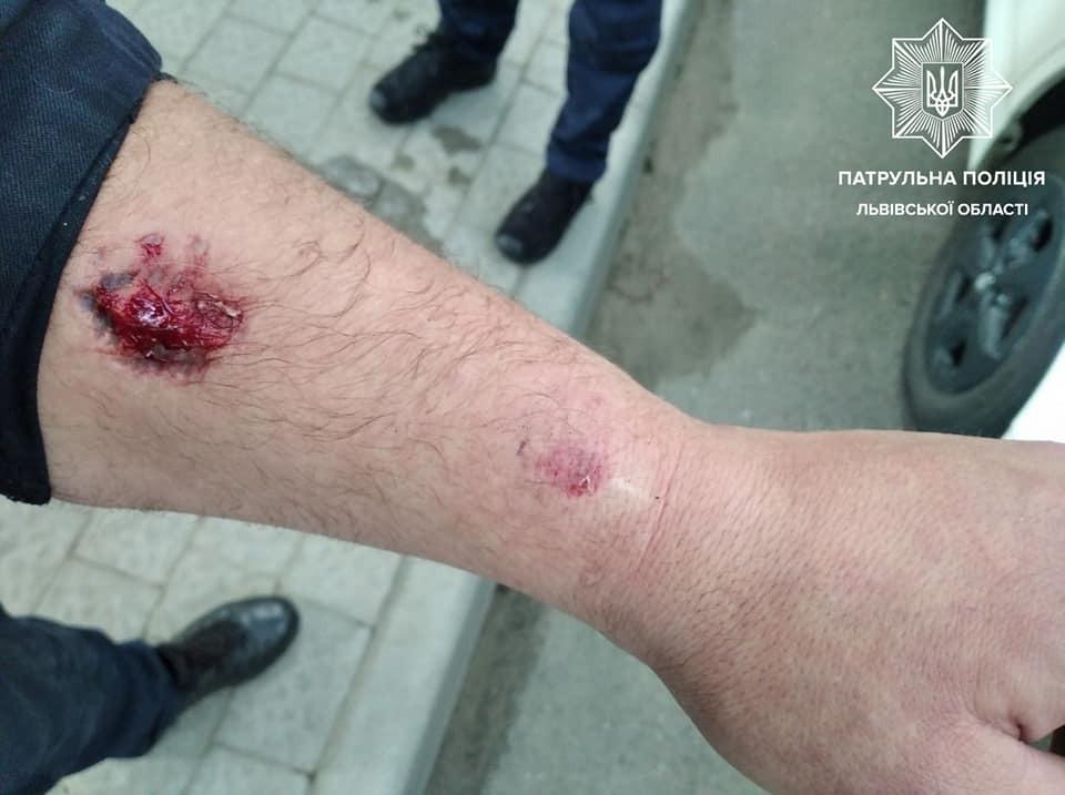 Во Львове нетрезвый водитель укусил патрульного за руку