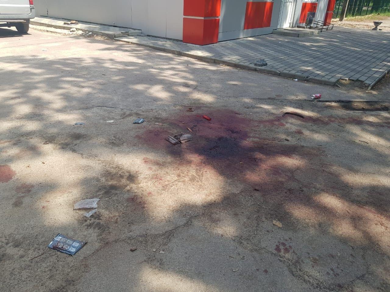 На Житомирщине мужчина устроил резню: один человек погиб, еще 8 – ранены