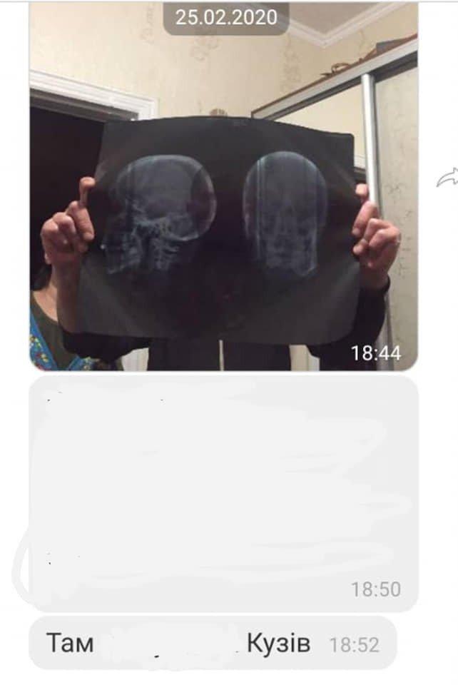 Фото с предыдущего дела об избиении, к которому якобы причастен коп из Кагарлыка
