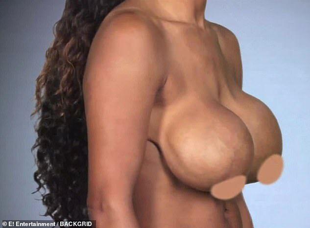 Тиа с изуродованной грудью
