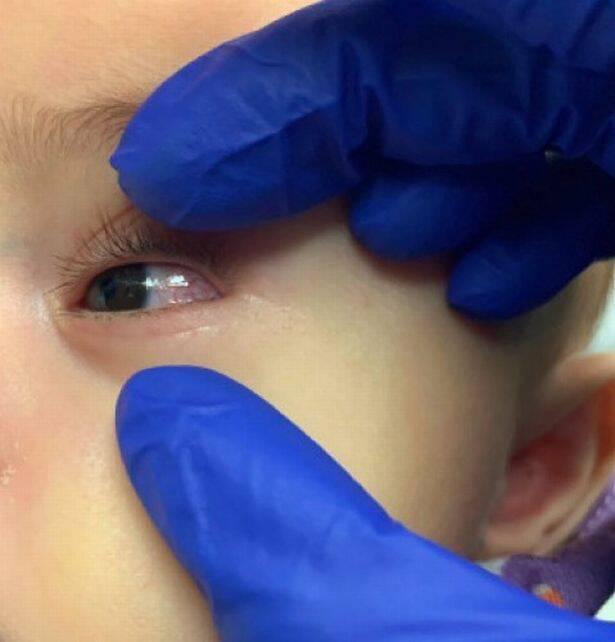 Болезнь Кавасаки может вызвать покраснение глаз