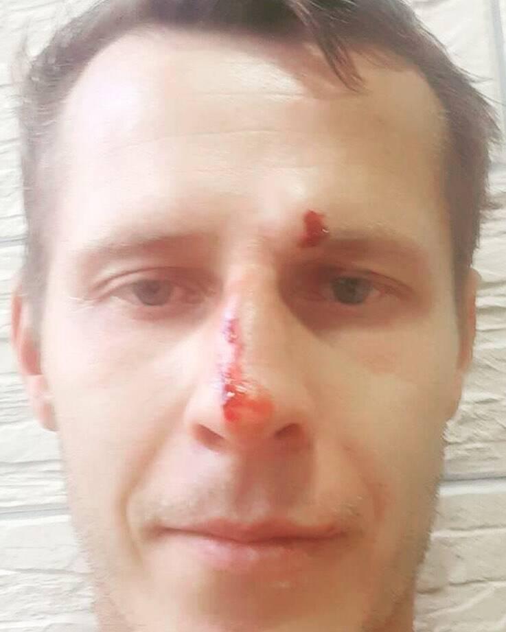 Александр Денисов показал, как выглядит арбитр после избиения в матче Первой лиги