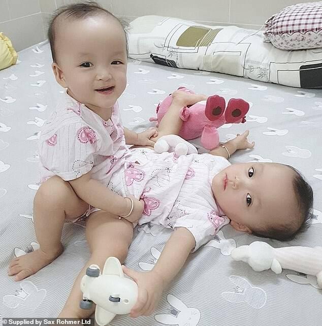 У В'єтнамі успішно розділили близнюків, зрощених в стегні.