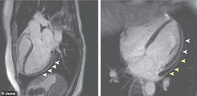Стрелки указывают на области сердца выживших после COVID-19, которые стали более толстыми и воспаленными после заражения