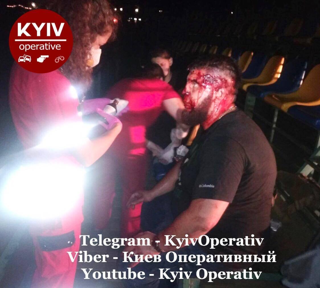 Под Киевом устроили массовую драку со стрельбой: есть раненый