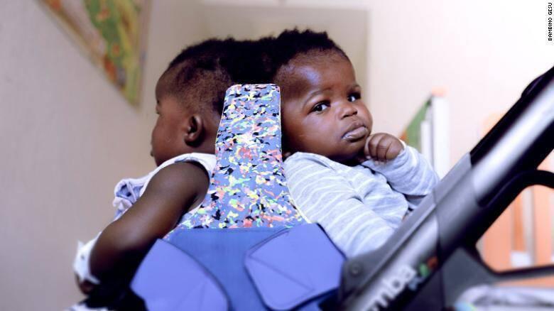В Ватикане провели первую в мире успешную операцию по разделению сросшихся головами сиамских близнецов