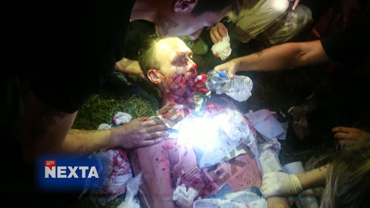 Кадры, подтверждающие серьезные травмы протестующего в Минске