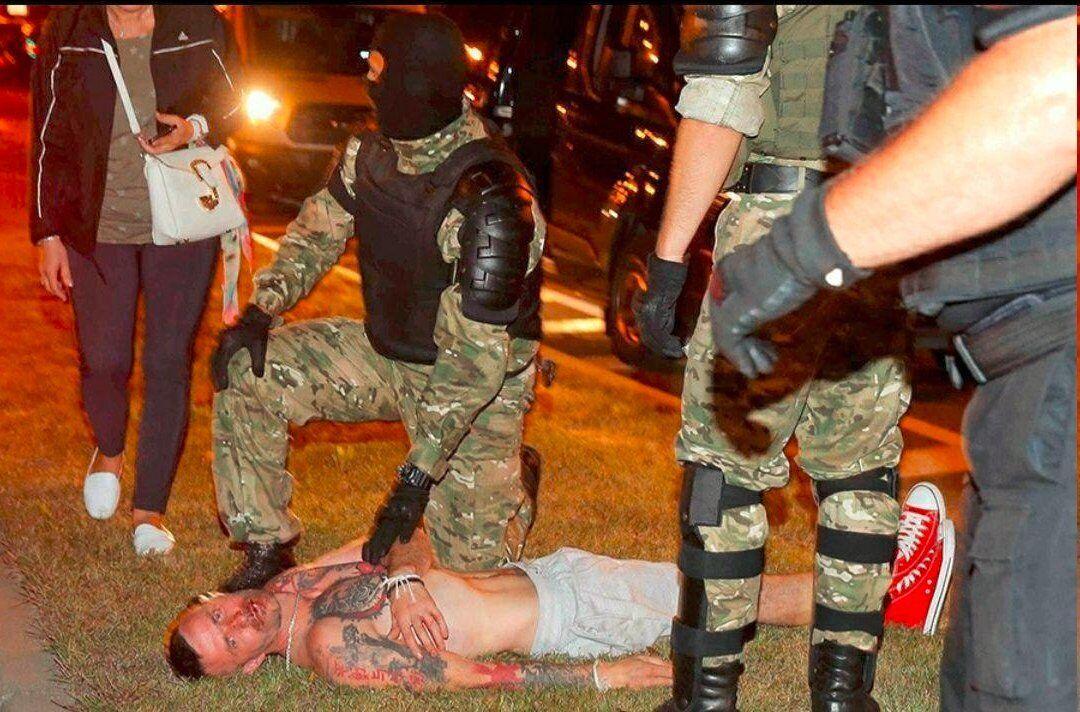Евгений Заичкин после избиения