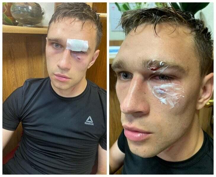 Арбитр Данченков после нападения Широкова