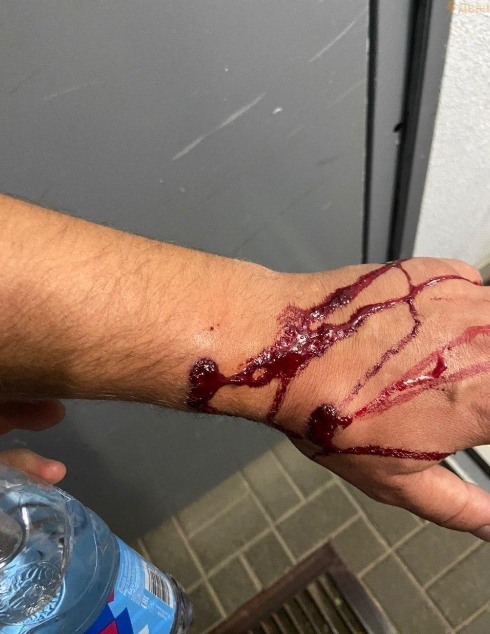 Милиция использовала резиновые пули для обстрела протестующих