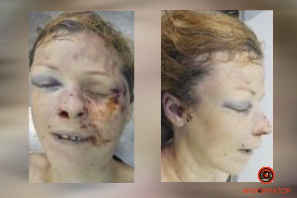 У Дніпрі в гаражному кооперативі знайшли тіло жінки