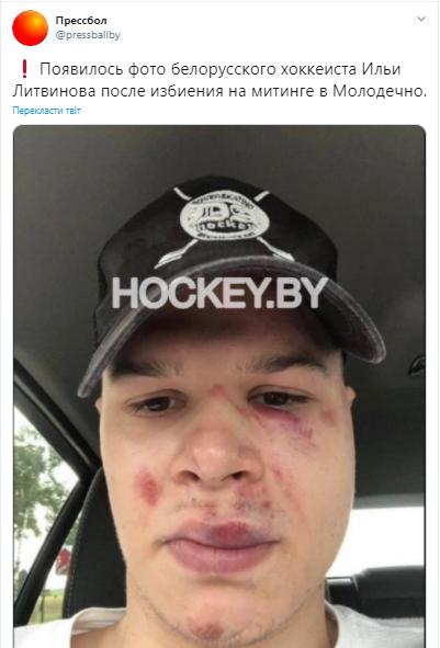 Лицо Ильи Литвинова после столкновения с сотрудниками правоохранительных органов