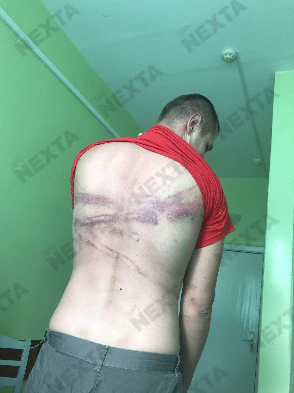 У мережі показали фото постраждалих в Білорусі