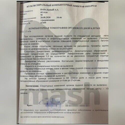 Дані МРТ Навального