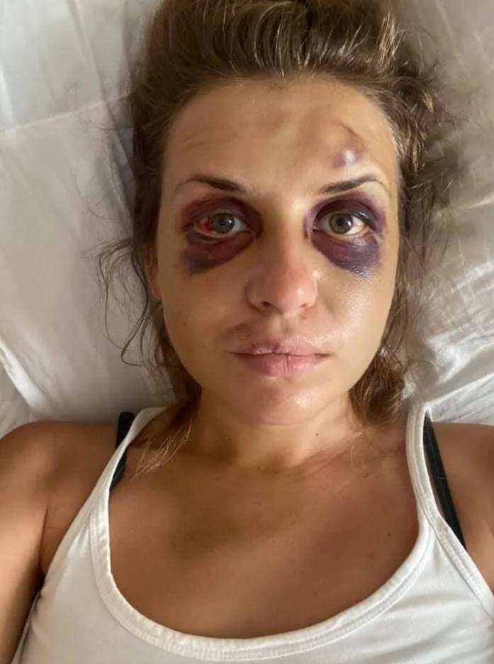 Анастасия Луговая после нападения. Фото - фейбсук Луговой