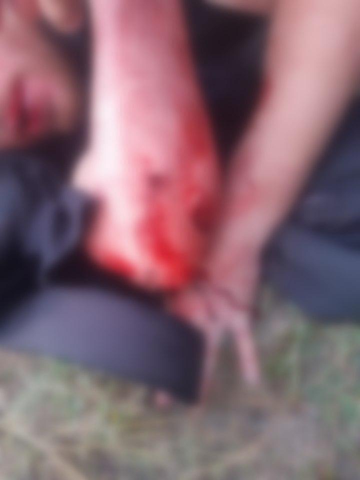 Одному пострадавшему пуля попала в руку.