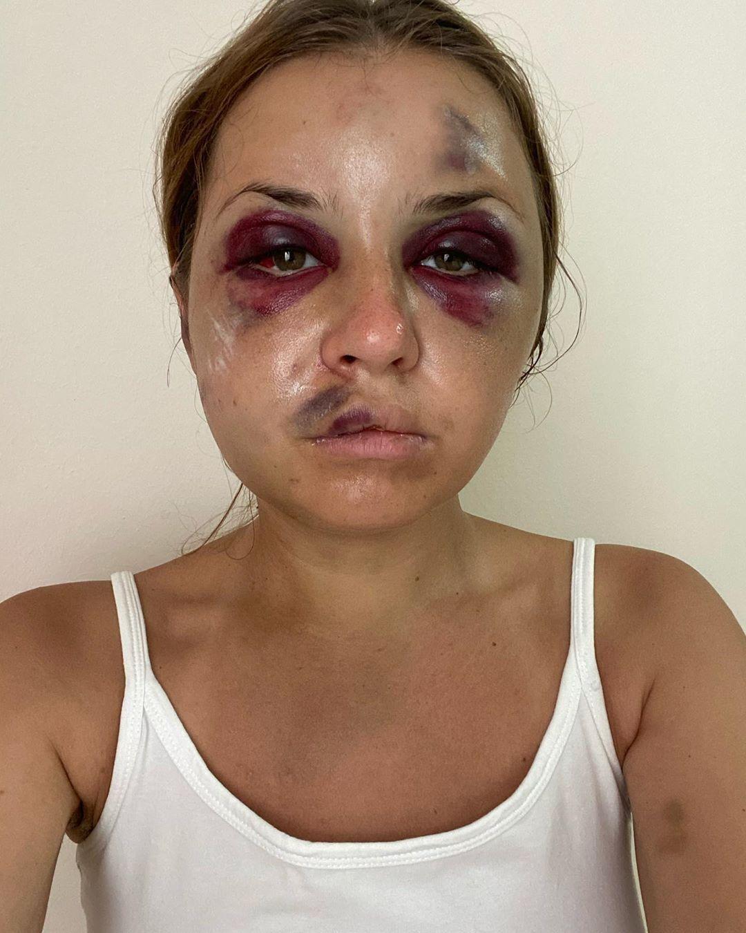 Анастасия Луговая на 2-й день после избиения