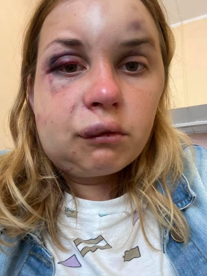 Анастасия Луговая на утро после избиения