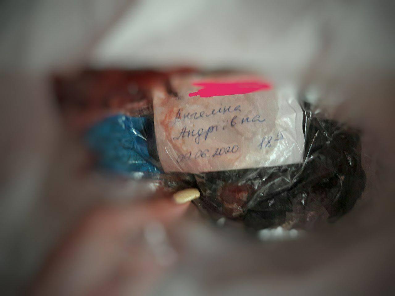 В Днепре роженице выдали изувеченное тело ребенка в пакете с мусором