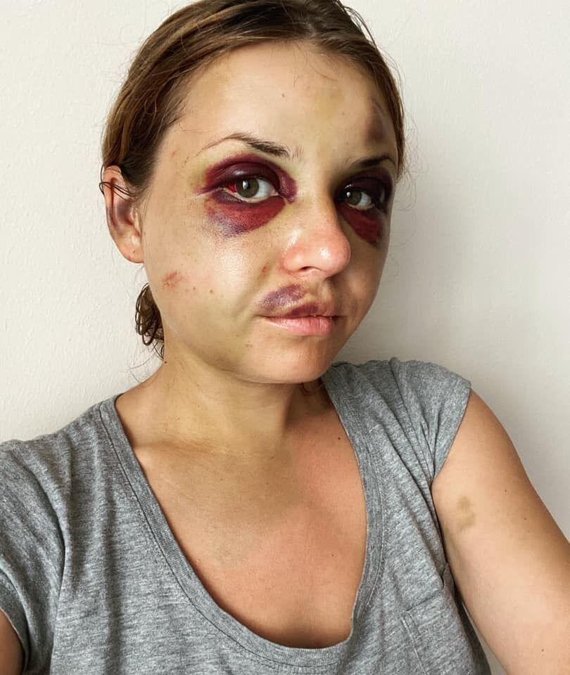 Анастасия Луговая на 3-й день после избиения