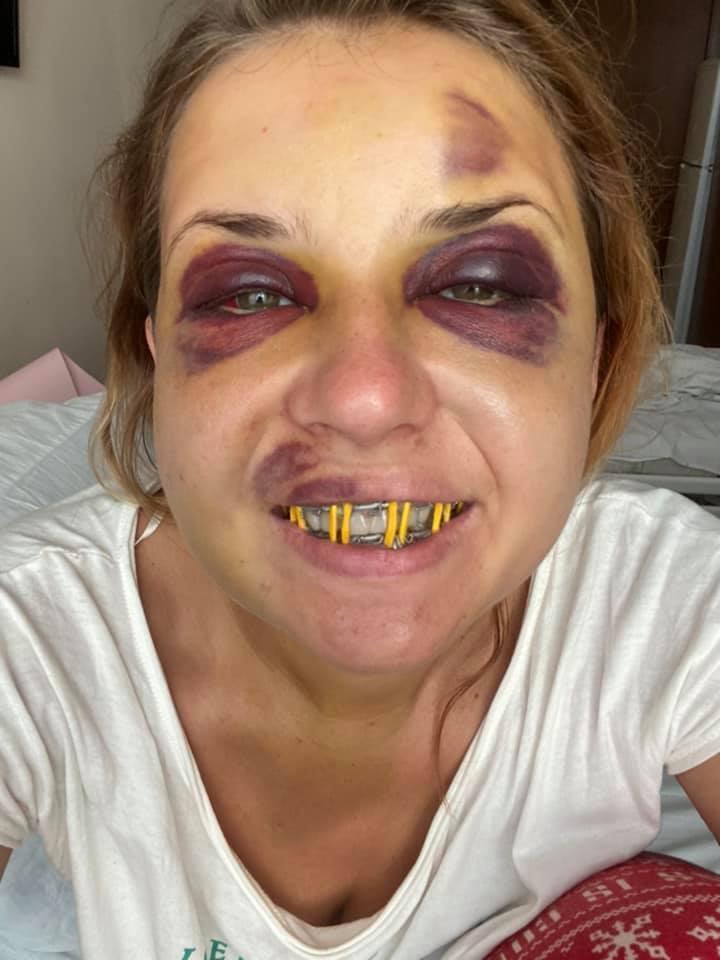 Анастасія Лугова після операції