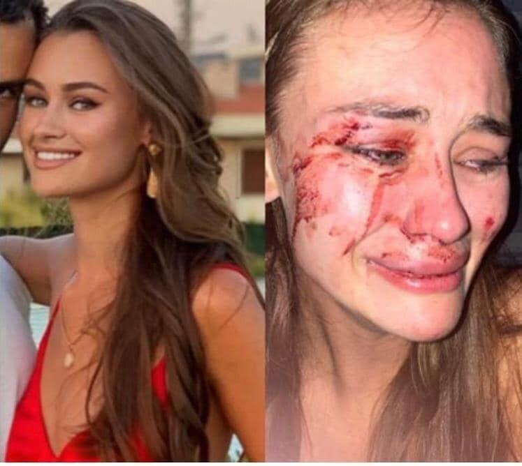 Украинскую модель избили в Турции: МВД требует наказать виновных (Instagram Дарьи Кирилюк)