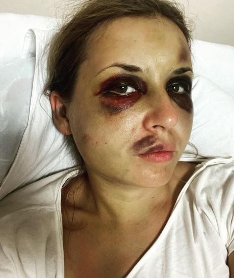 Анастасія Лугова поскаржилася на погіршення самопочуття після нападу в потязі
