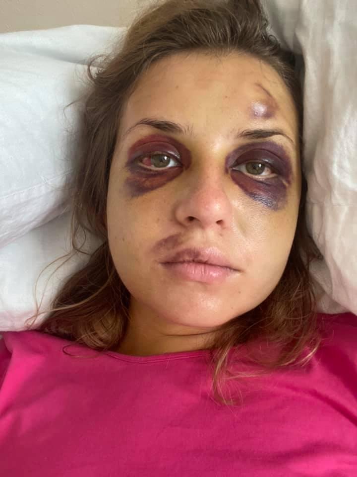 Анастасия Луговая показала, как выглядит на 7-й день после нападения в поезде