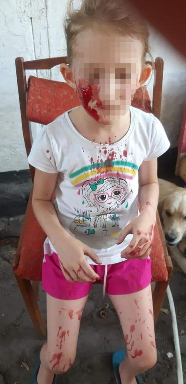Тварина вкусила дівчинку за обличчя