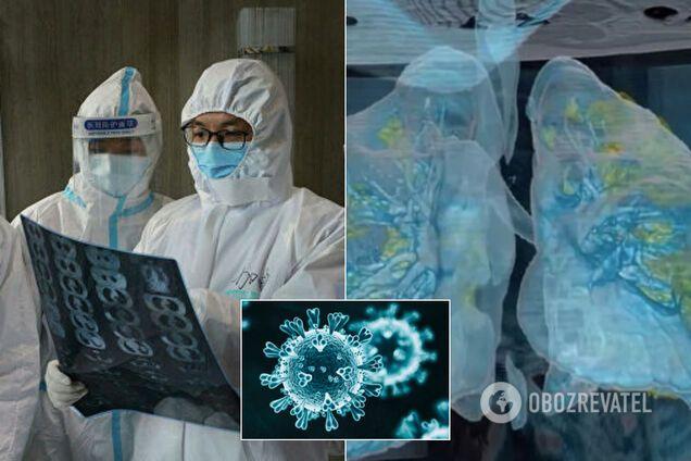 Ученые обнаружили скрытый признак коронавируса
