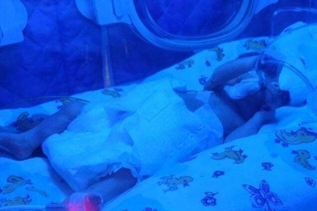 У Запоріжжі 16-річна дівчина народила дитину вагою менше 700 грамів