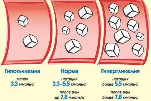 Топ-5 продуктів, які вбивають цукор в крові