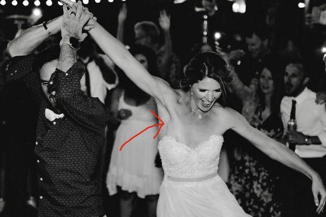 Невеста из Новой Зелландии увидела у себя опухоль на свадебной фотографии