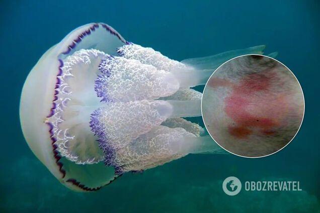 У отдыхающих в Бердянске ожоги от медуз