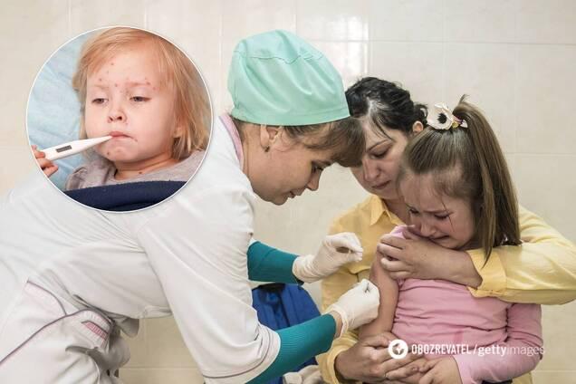 Украина грозит вспышка кори из-за низкой вакцинацию населения